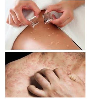 causas de la alergia al frio